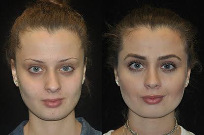 Hair Restoration / Trasplante de Cabello Jennyfer F. Cocco MD