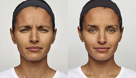 Dysport - Jennyfer F. Cocco, MD Plastic Surgery