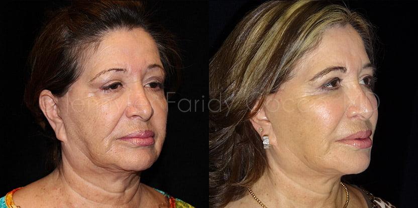 facelift b 2