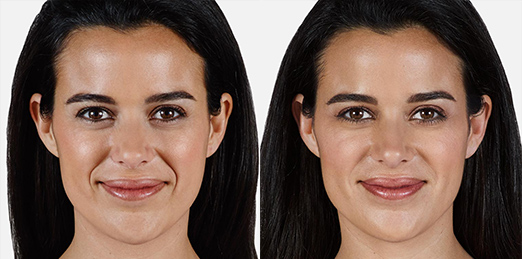 Juvederm Vollure XC - Jennyfer F. Cocco, MD Plastic Surgery