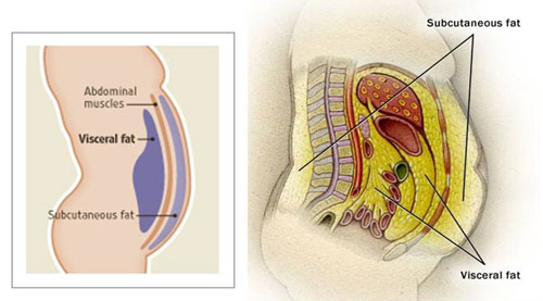 What's Your BMI - Visceral Fat / Grasa Visceral - Jennyfer F. Cocco MD - Plastic Surgery